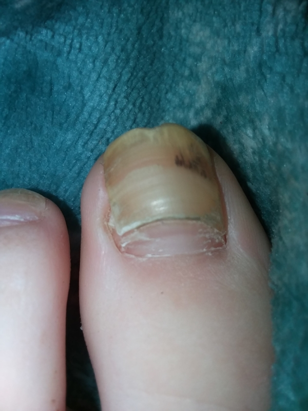 Overlapping toenail and Black spot on toe nail | Nail Disorders ...