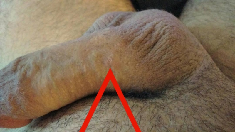 Ingrown hair penis picture
