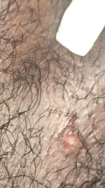what does bump on pubic hair look like could it be an ingrown hair or herpes genital herpes