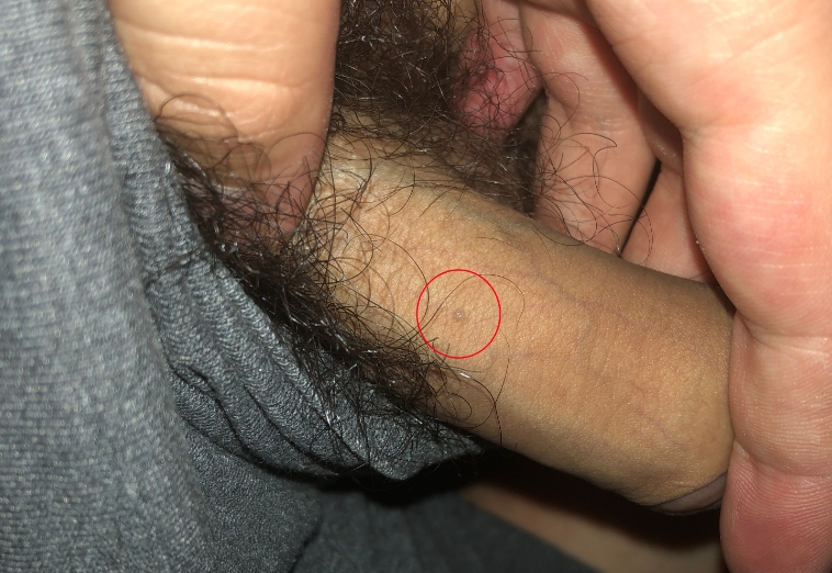 Genital warts on penis shaft