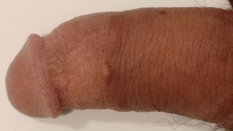 Fordyce Spots On Labia Removal Uk By Ppp Treatment Uk
