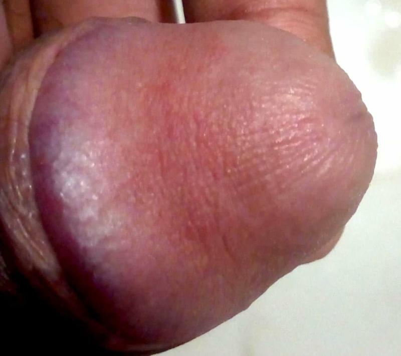 Vagina bump and lumps