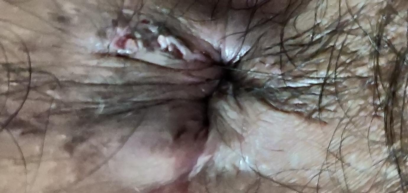 Teen anal wart surgery pennsylvania philadelphia proctologist porno