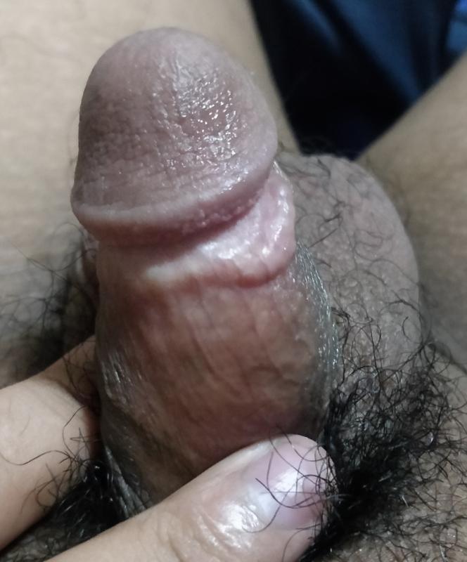 Acute Penile Trauma