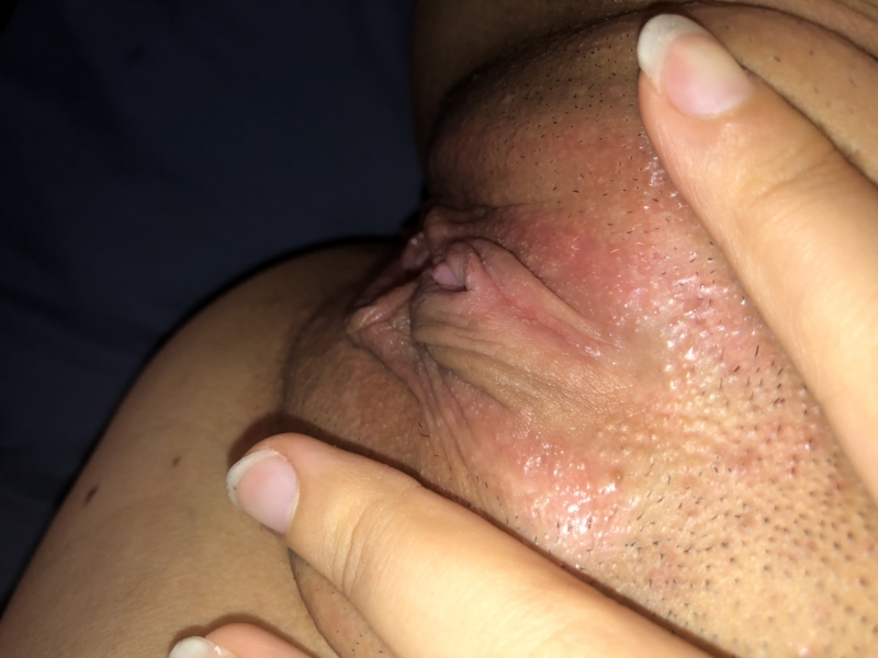 Bumps On The Vagina