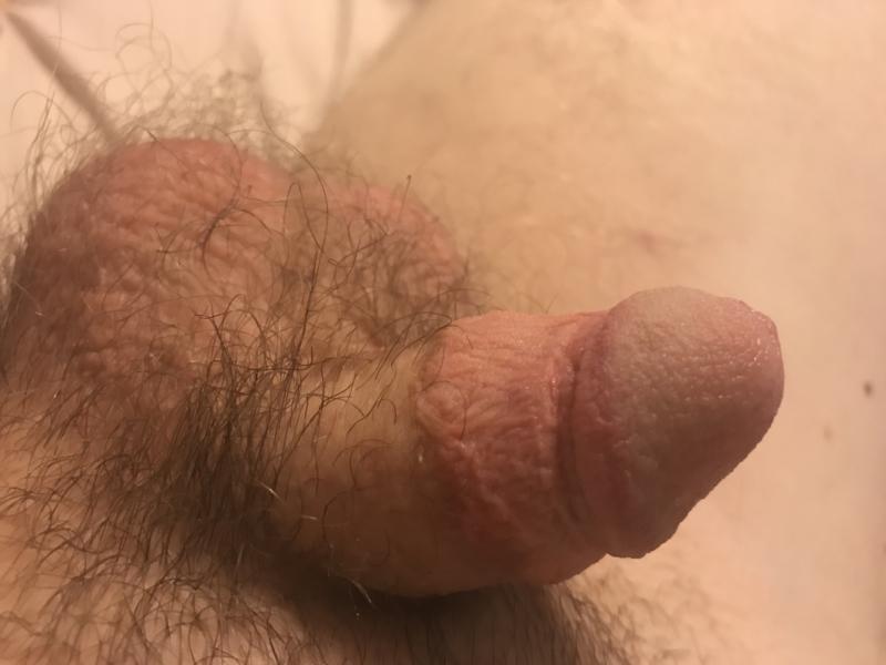 Bad broken skin from masturbation