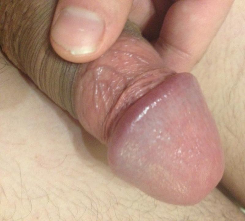 Penile pain in a hemodialysis patient