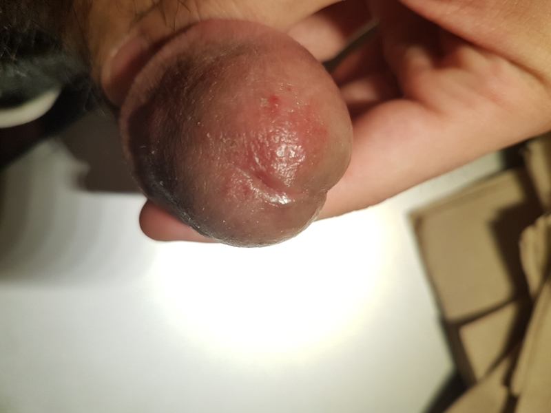 Yeast infection and anal itching