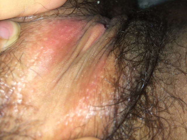 Vaginal itching, rashes