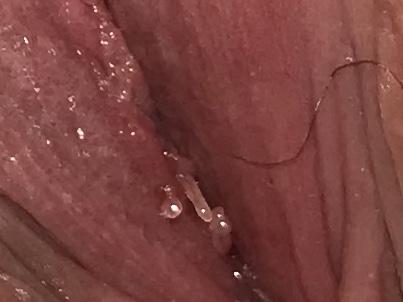 vestibular papillomatosis vs herpes cancer colon jeune femme