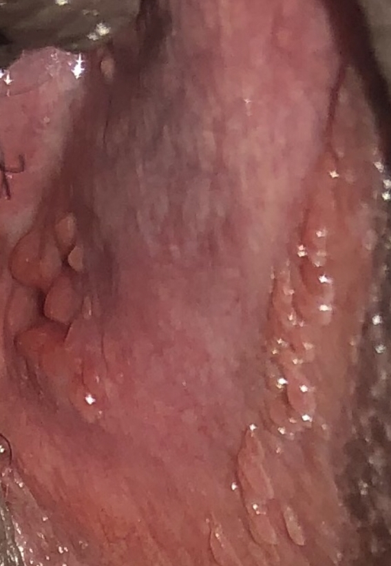 Hpv warts discharge - Foot wart diagnosis