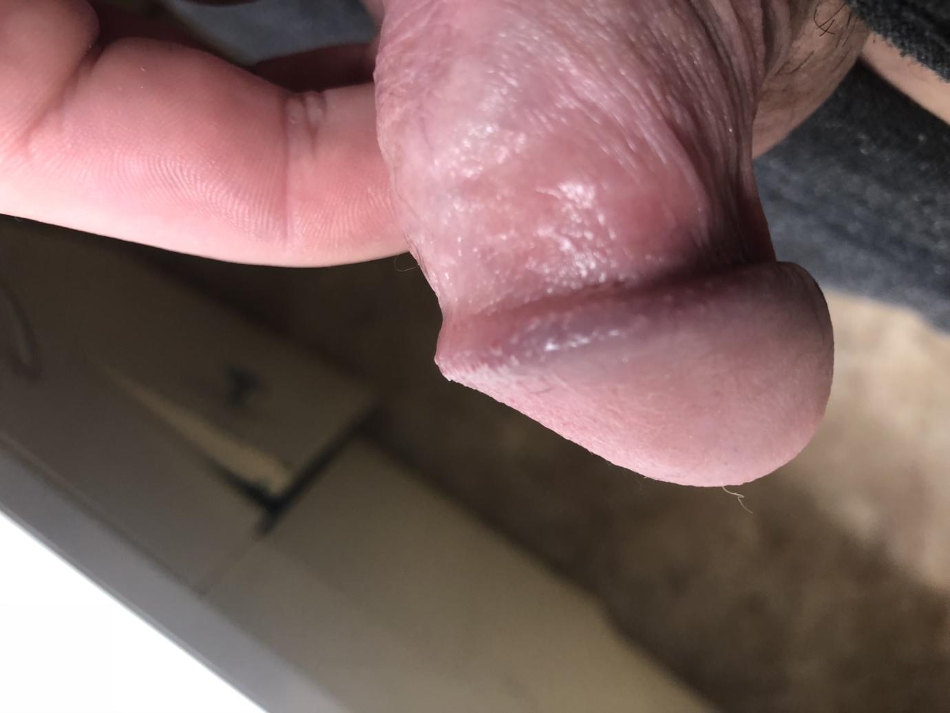 Somebody please help me foreskinshaft rash