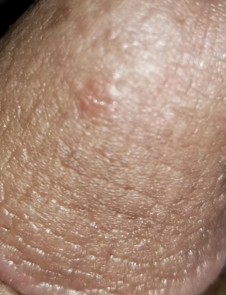 How Can Red Spots On The Head Of My Penis Be Treated
