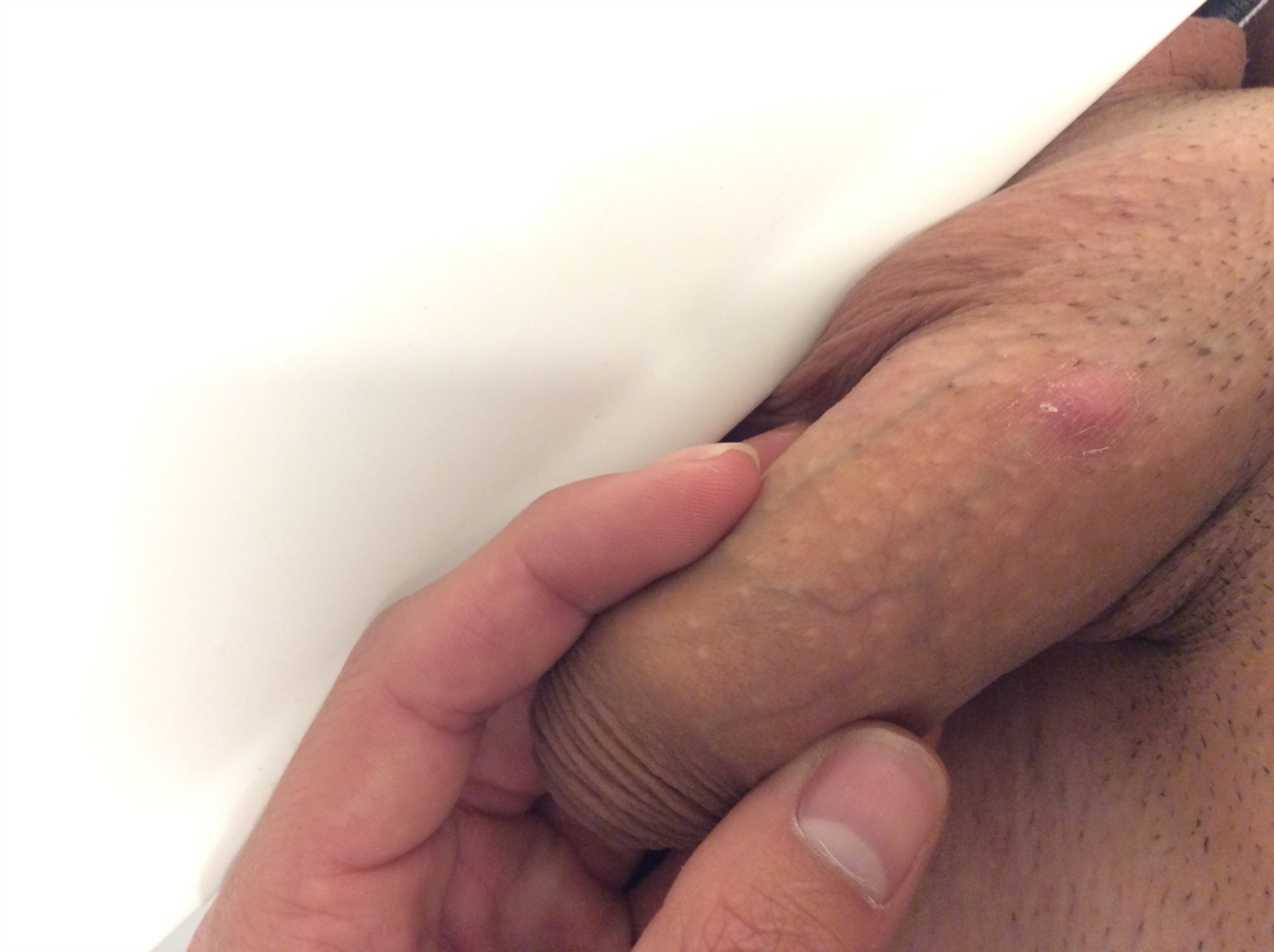 What are these tiny bumps on my penis shaft