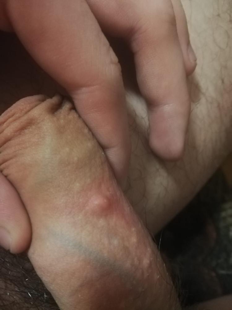 On one penis pimple Pimples on