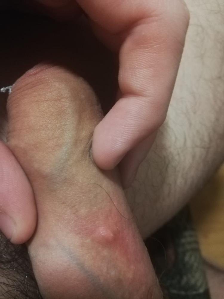 Zit on dick