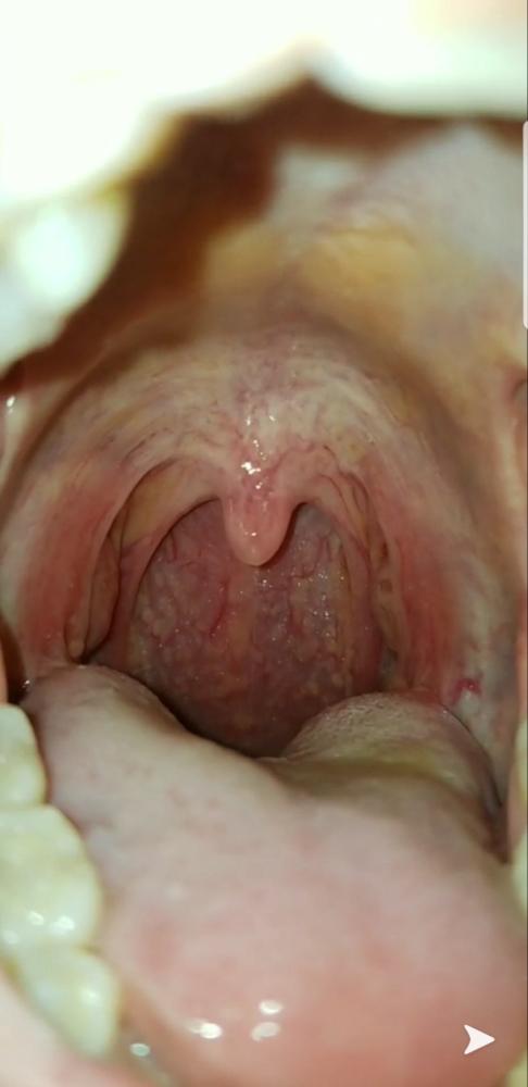 hpv warts throat)