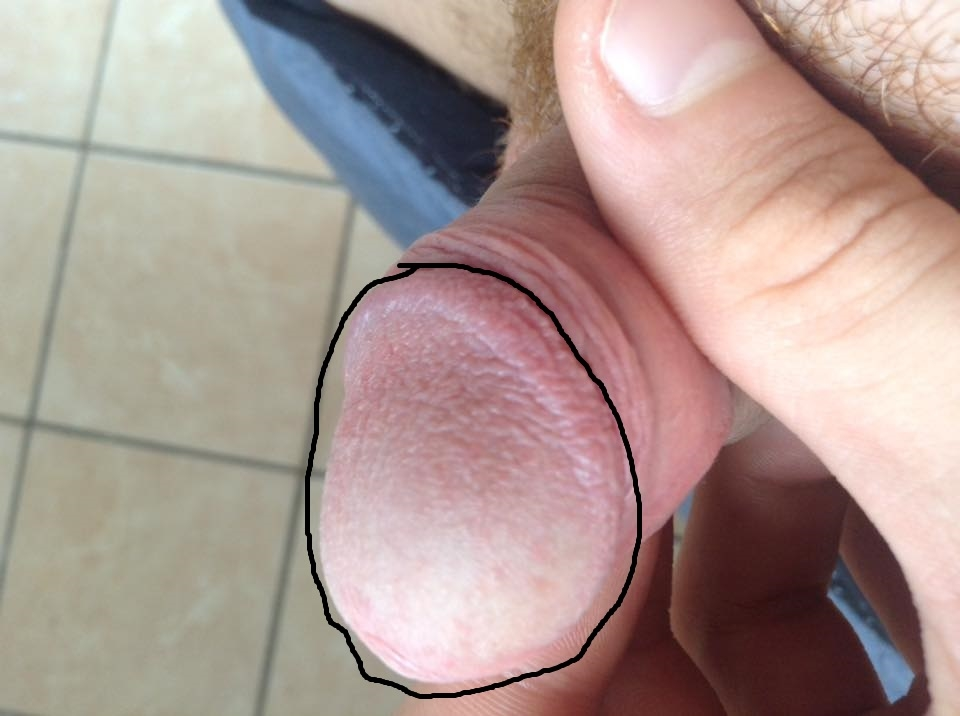 Spots On The Penis