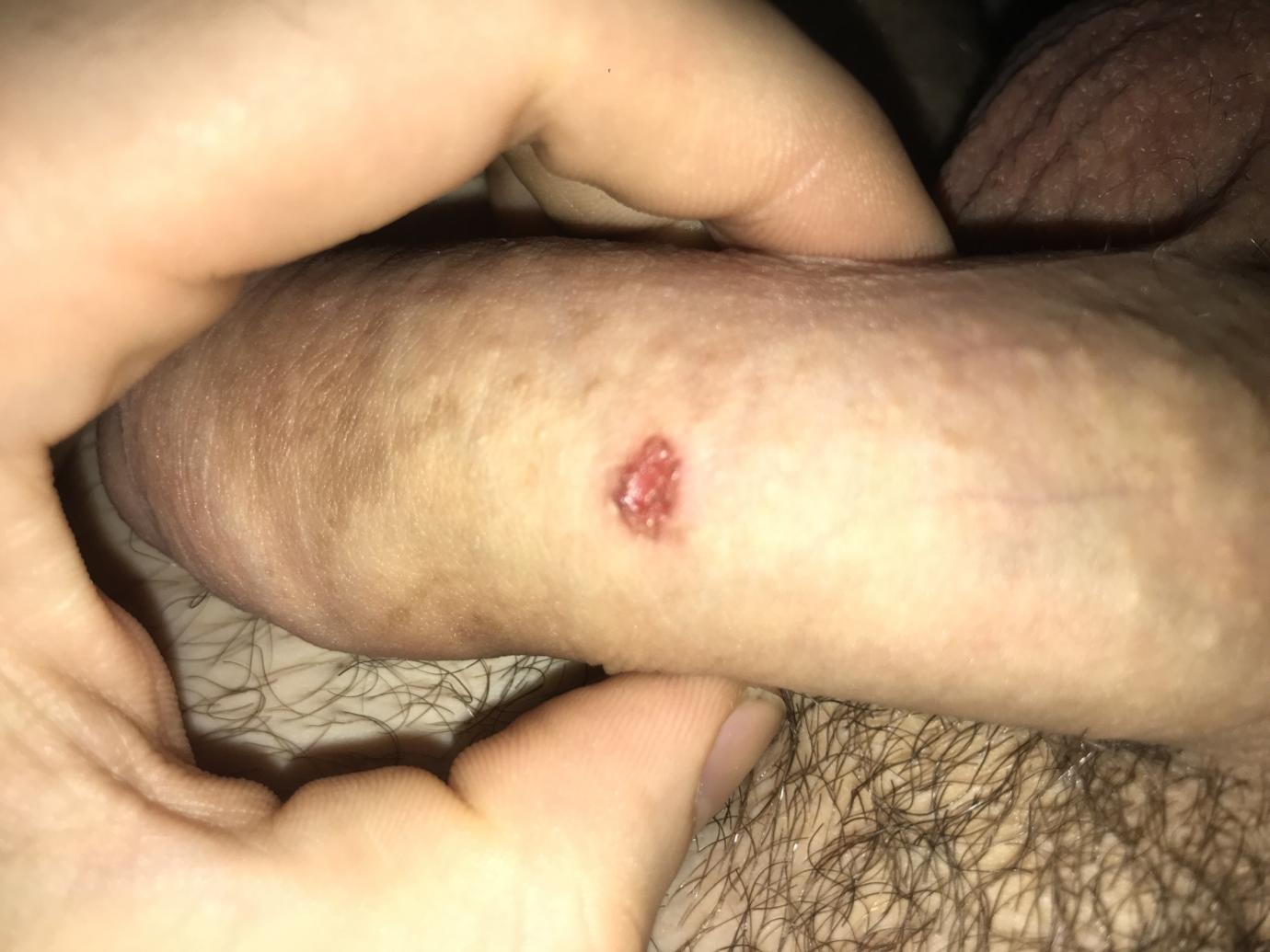 Forum herpes genital Forum despre