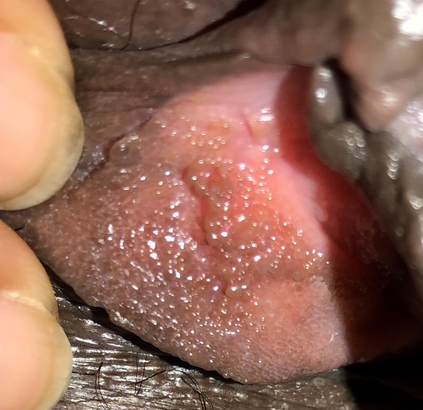 benign vestibular papillomatosis