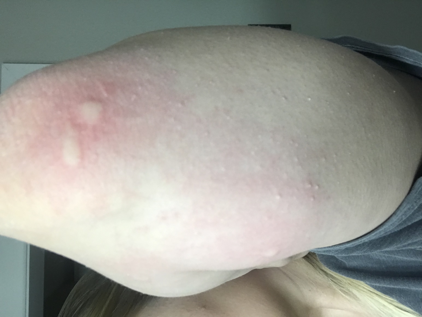 Hives? | Urticarial Rash | Forums | Patient