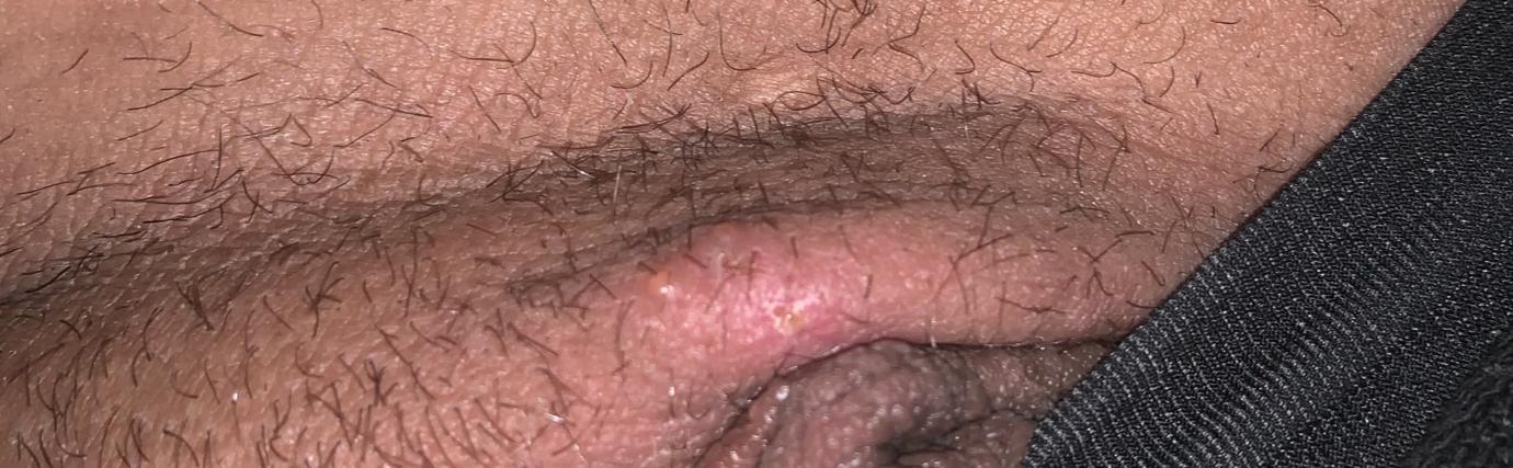 Herpes??!!?   Genital Herpes Simplex   Forums   Patient