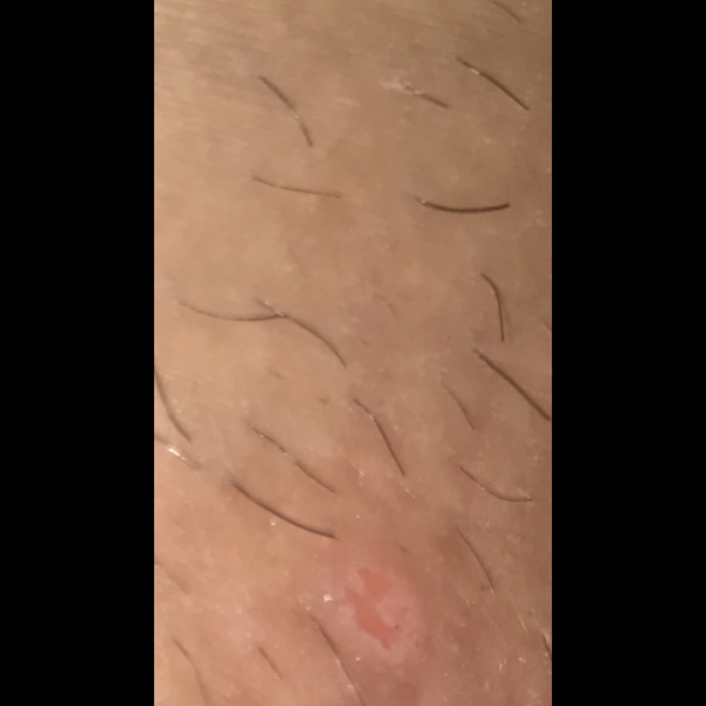 Could this be genital herpes? | Genital Herpes Simplex