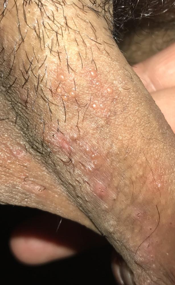 Pimples penile Pimple on