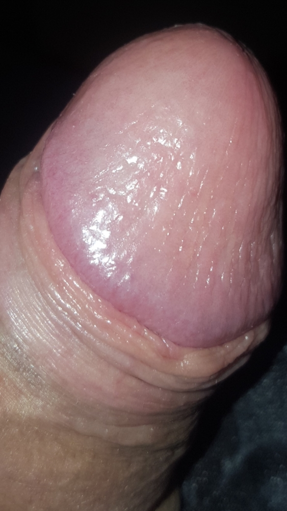 Red bumps after sex