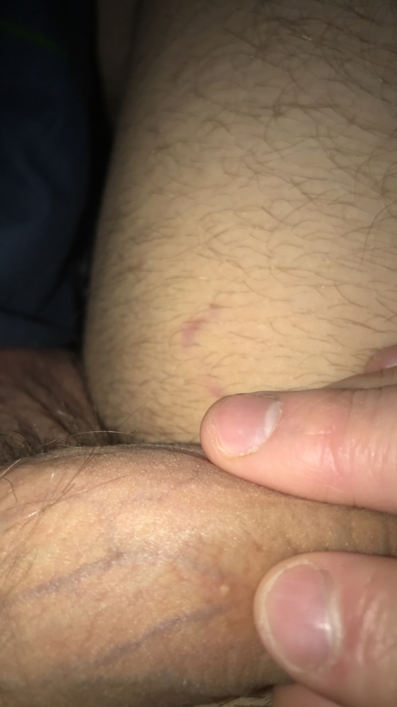 Why do i have little white dots on my penis