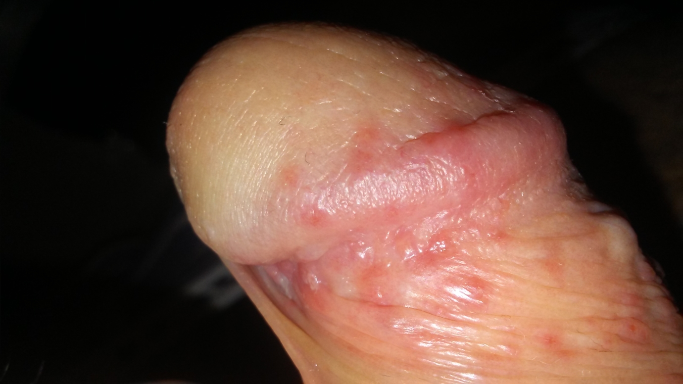 Red spots on penis after sex