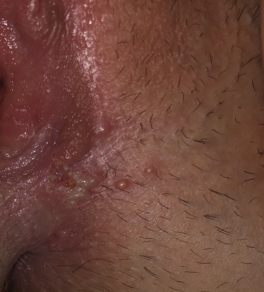 Bumps or herpes