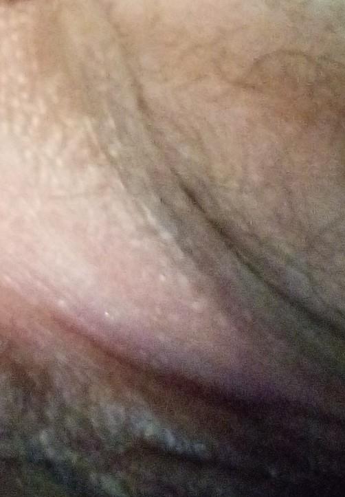 Single hard bump on labia majora
