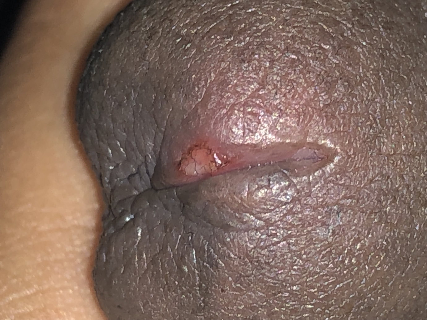 Peeling Skin On Penile Shaft