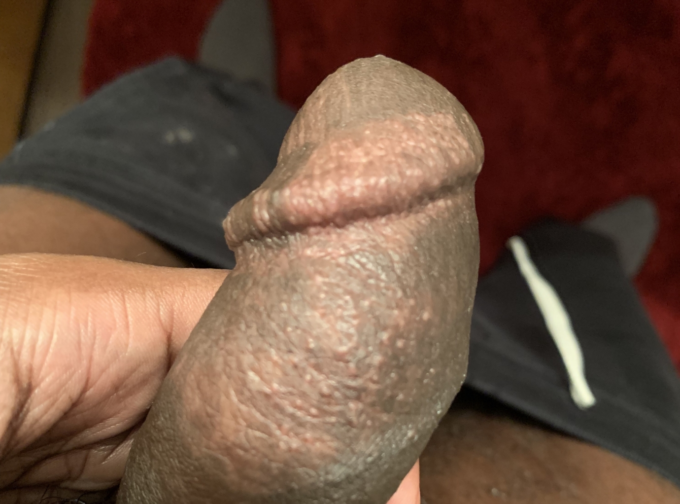 Puss bumps on penis