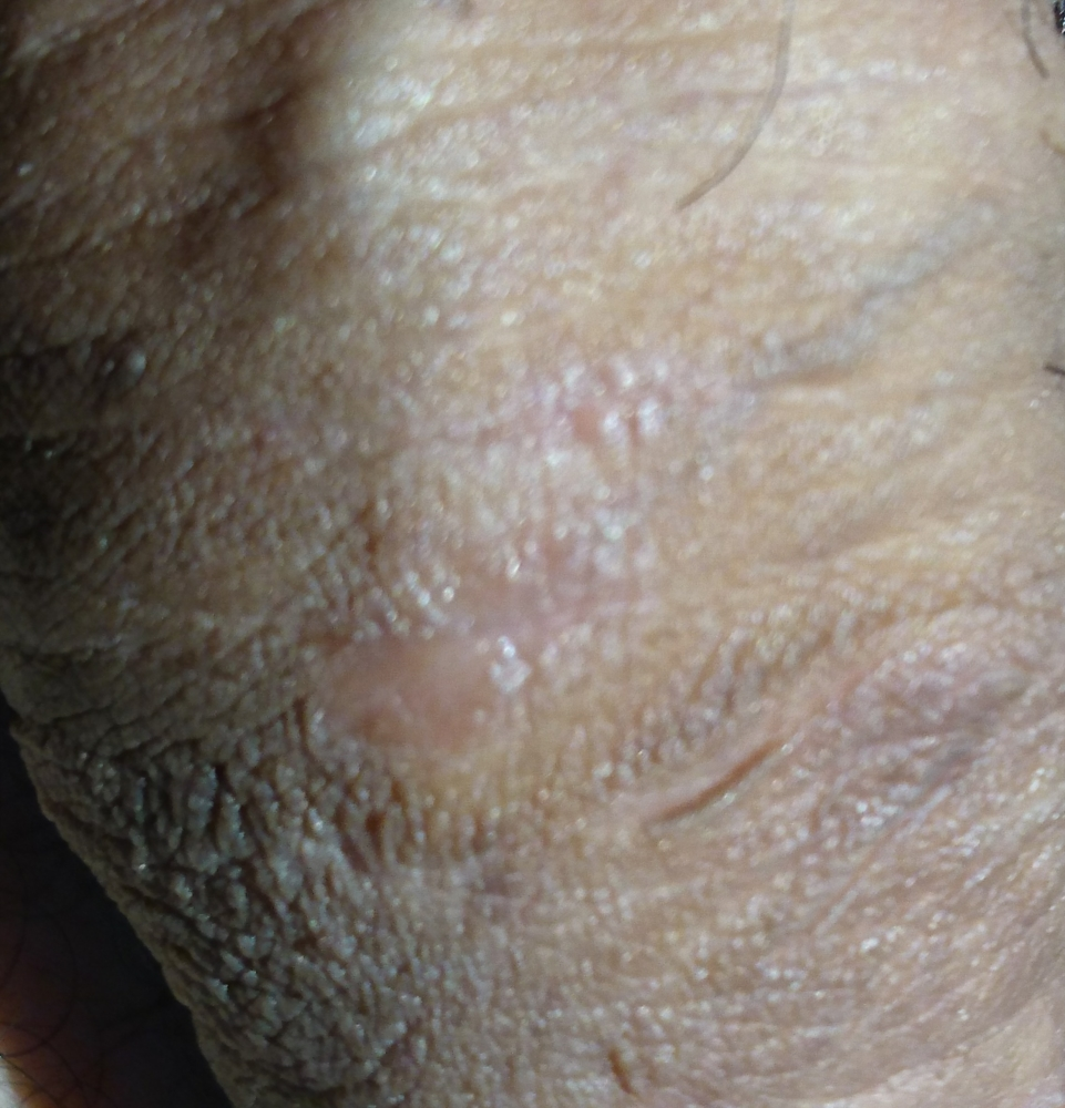 Shaft white on spots rid penile of to get White Spots