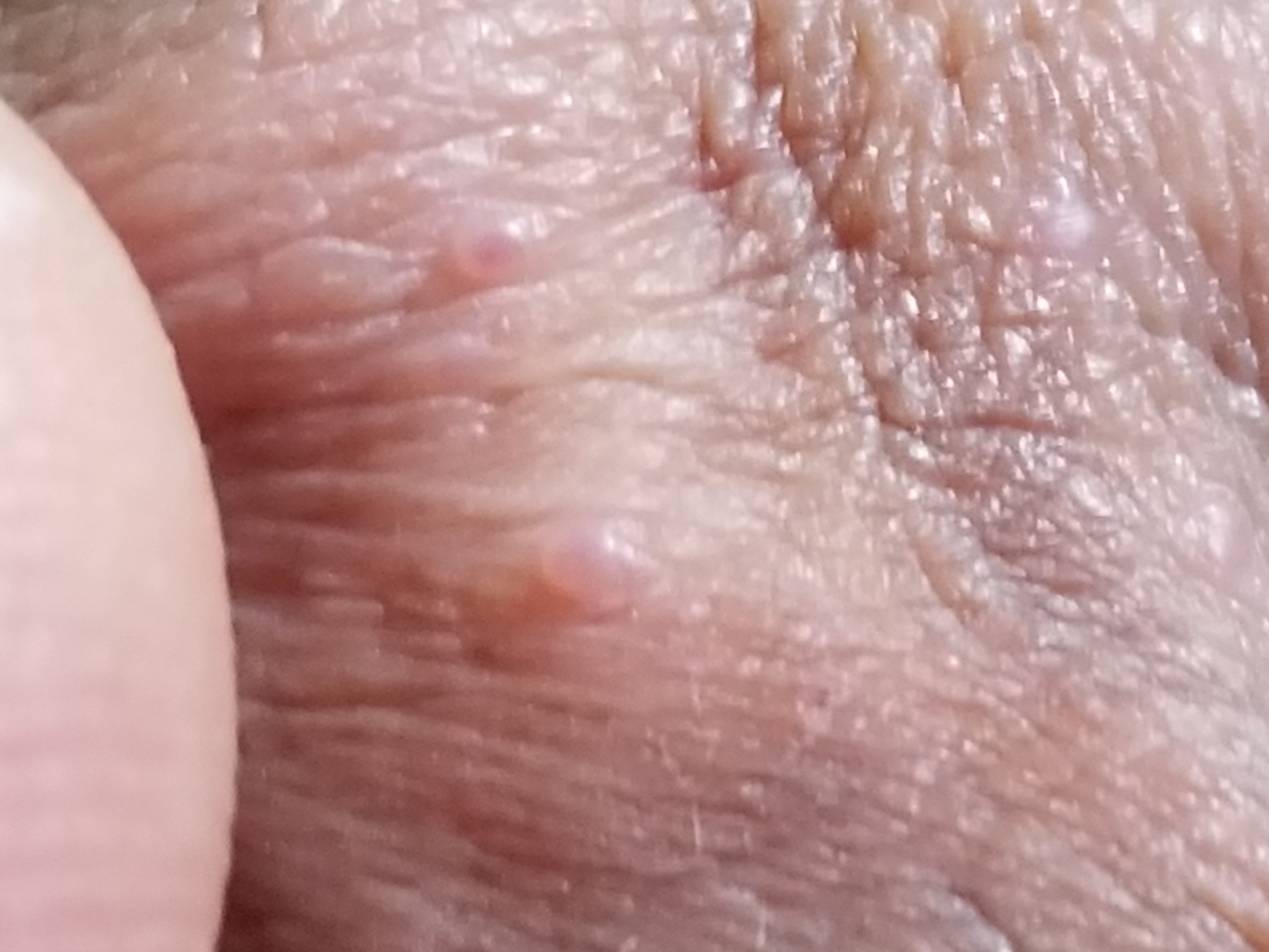 Sebaceous gland on penis
