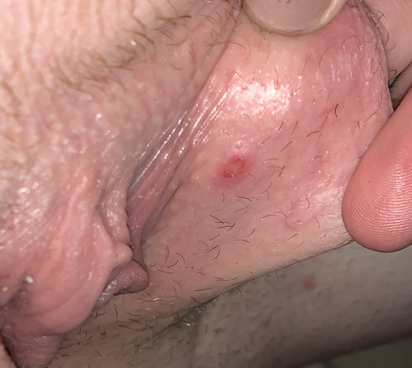 Rashes, Bumps, And Lumps Below The Belt