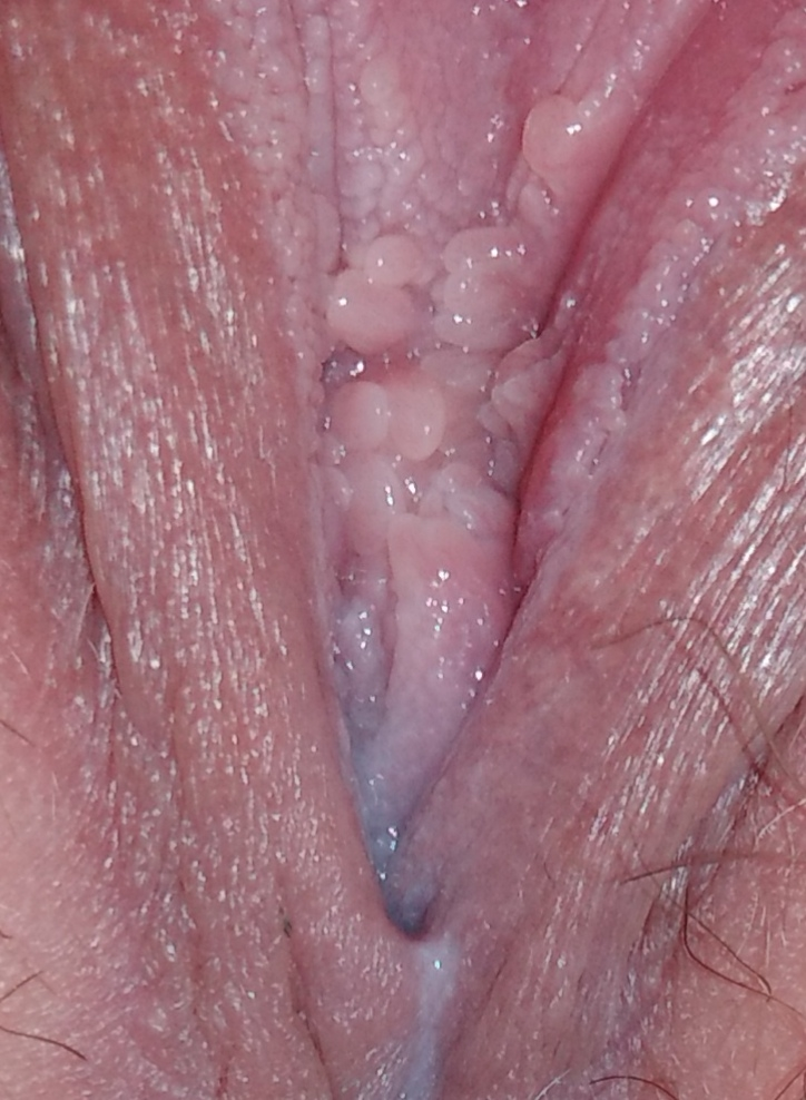 sex-with-internal-vaginal-warts-free-couple-sex-pictures
