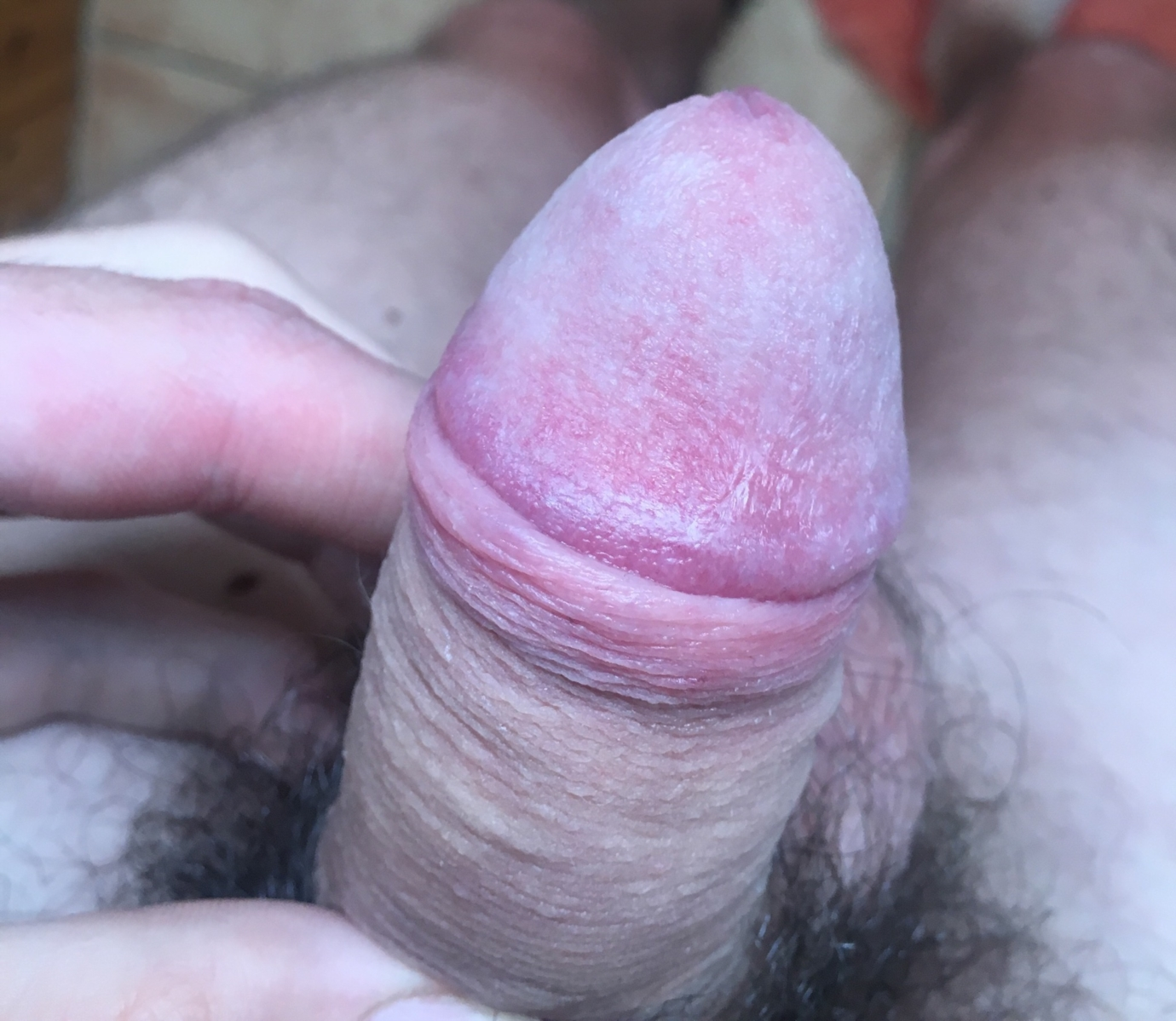Significance of penile hypersensitivity in premature ejaculation
