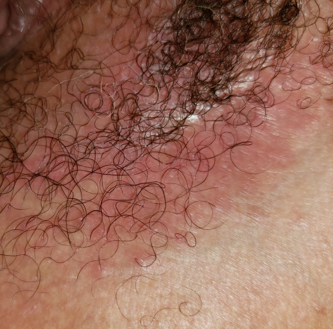Painless rash/blisters - what does this look like