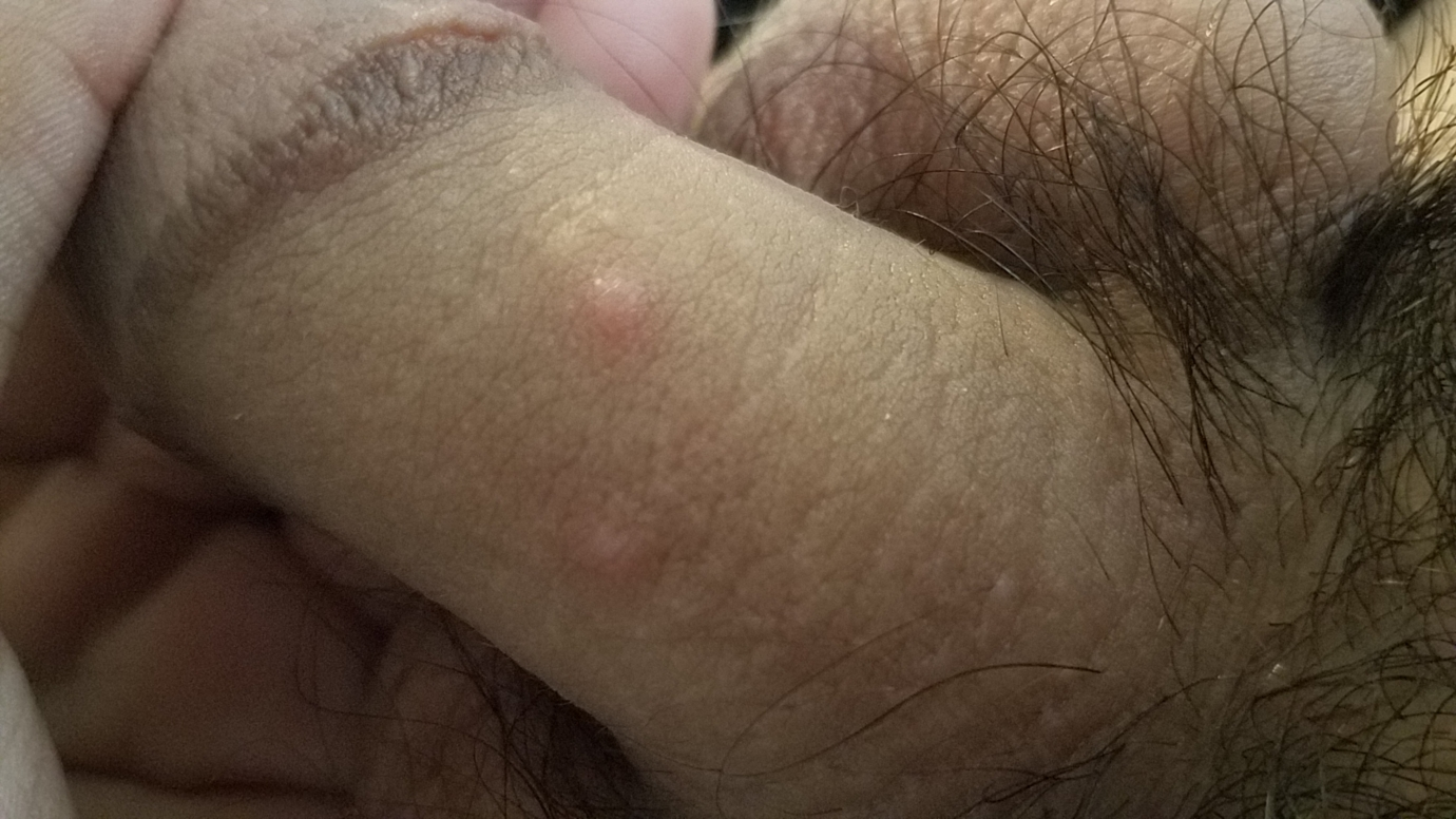 Warts on penis but never had sex