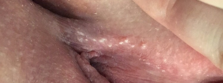 Bump on outer vagina