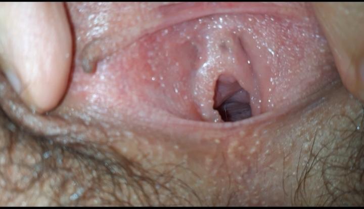 White bumps inside vagina urge to urinate