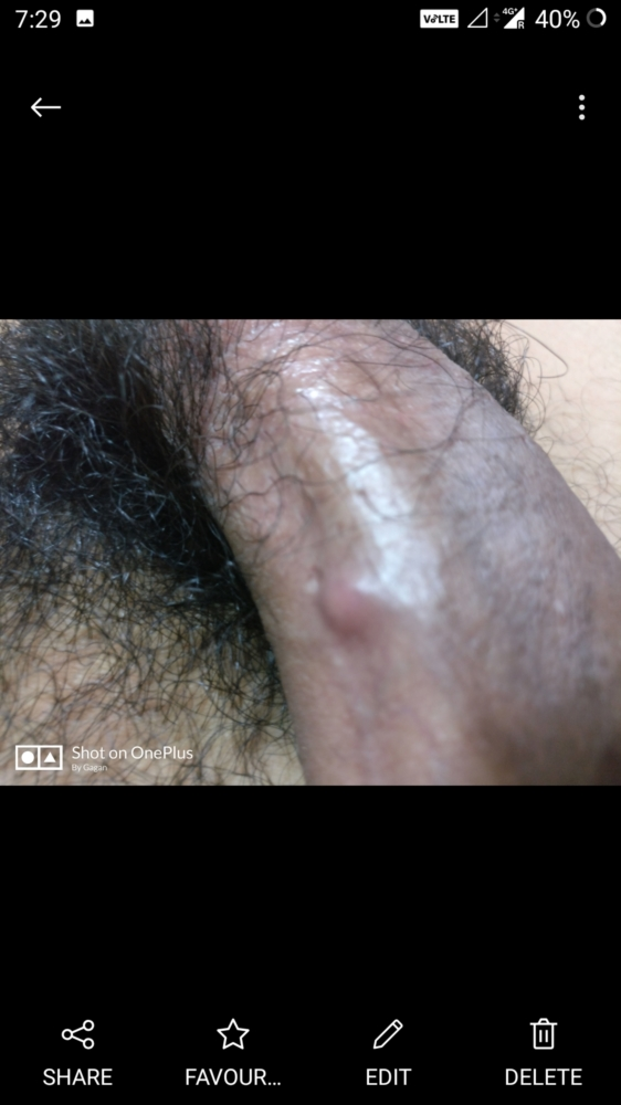 Bumps Around The Head Of A Penis