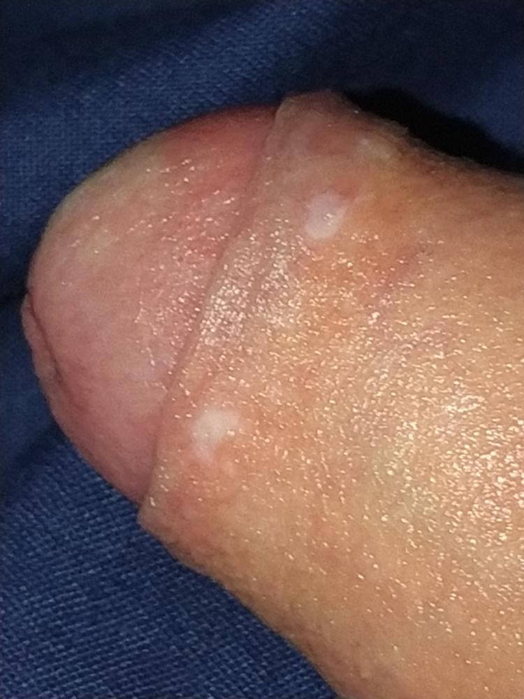 Penis vitiligo Vitiligo Penis: