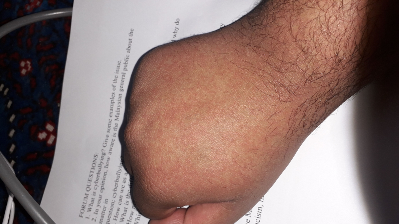 Is this HIV rash? | Sexual Health | Forums | Patient