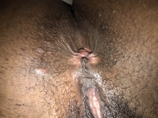 Flap of skin inflamed near anus