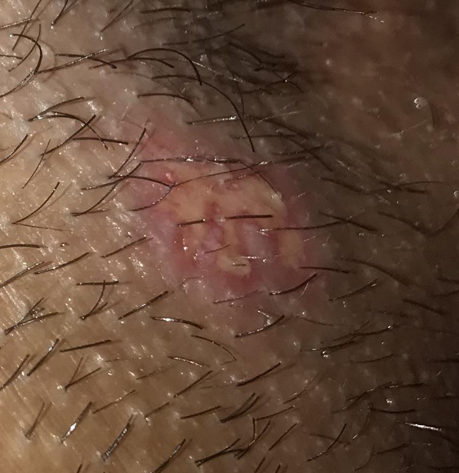 Is It An Outbreak Genital Herpes Simplex Forums Patient