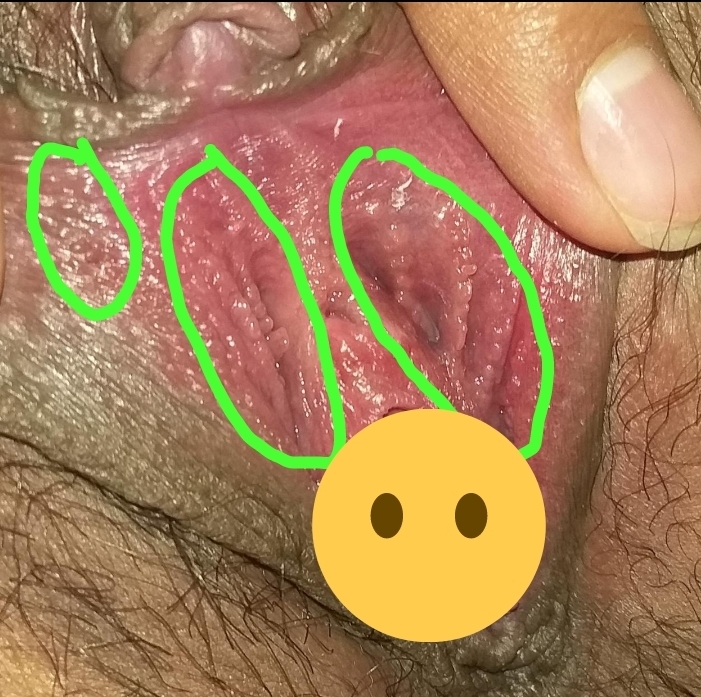 Hpv or vp help me! | Sexual Health | Forums | Patient